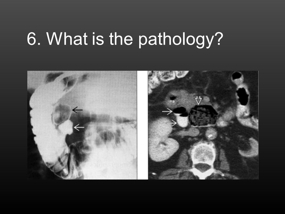 6. What is the pathology