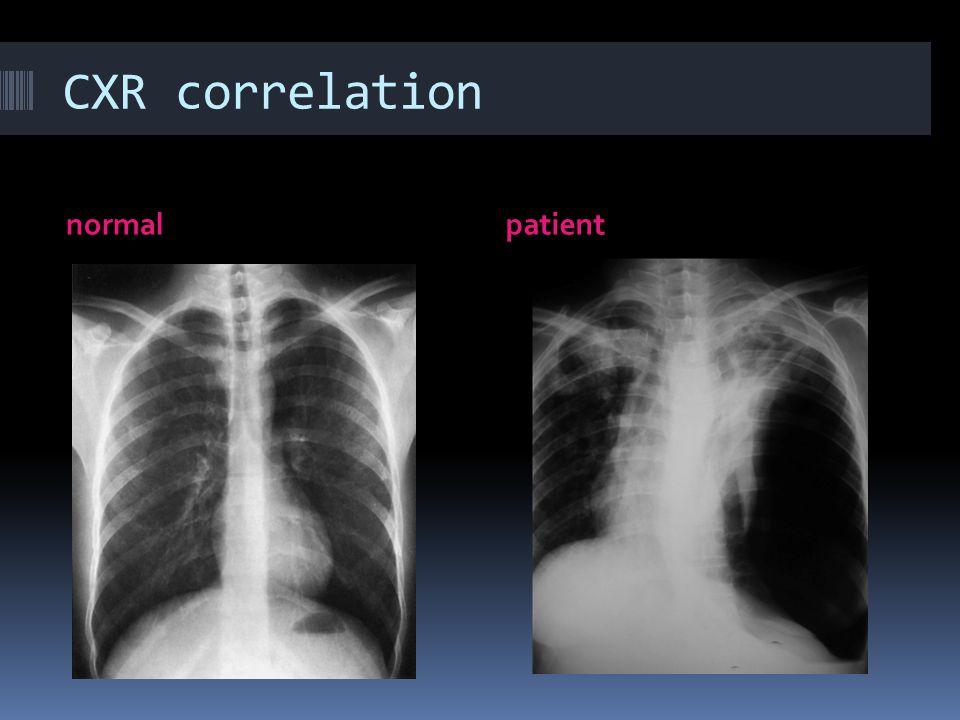 CXR correlation normalpatient