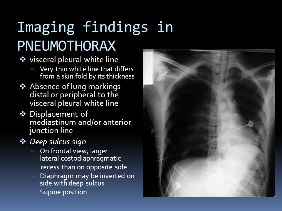 Imaging findings in PNEUMOTHORAX  visceral pleural white line  Very thin white line that differs from a skin fold by its thickness  Absence of lung