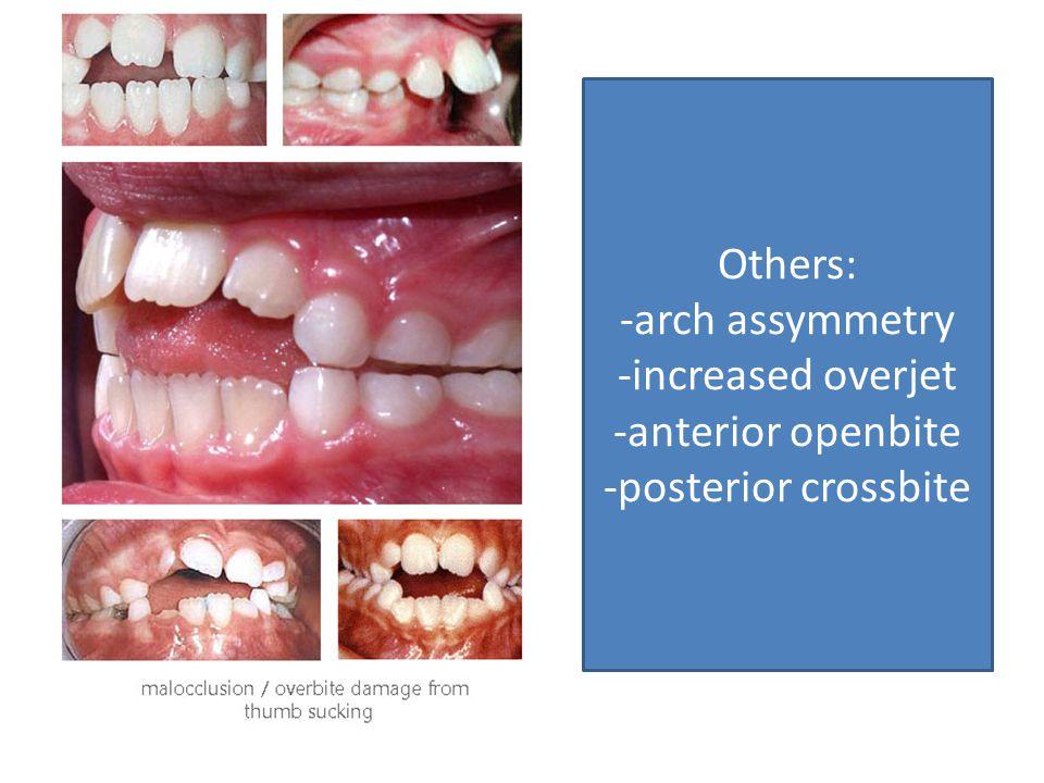 Others: -arch assymmetry -increased overjet -anterior openbite -posterior crossbite