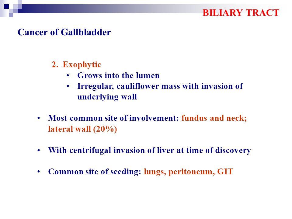 Histologic & Molecular Sequence in the Pathogenesis of Gallbladder Carcinoma