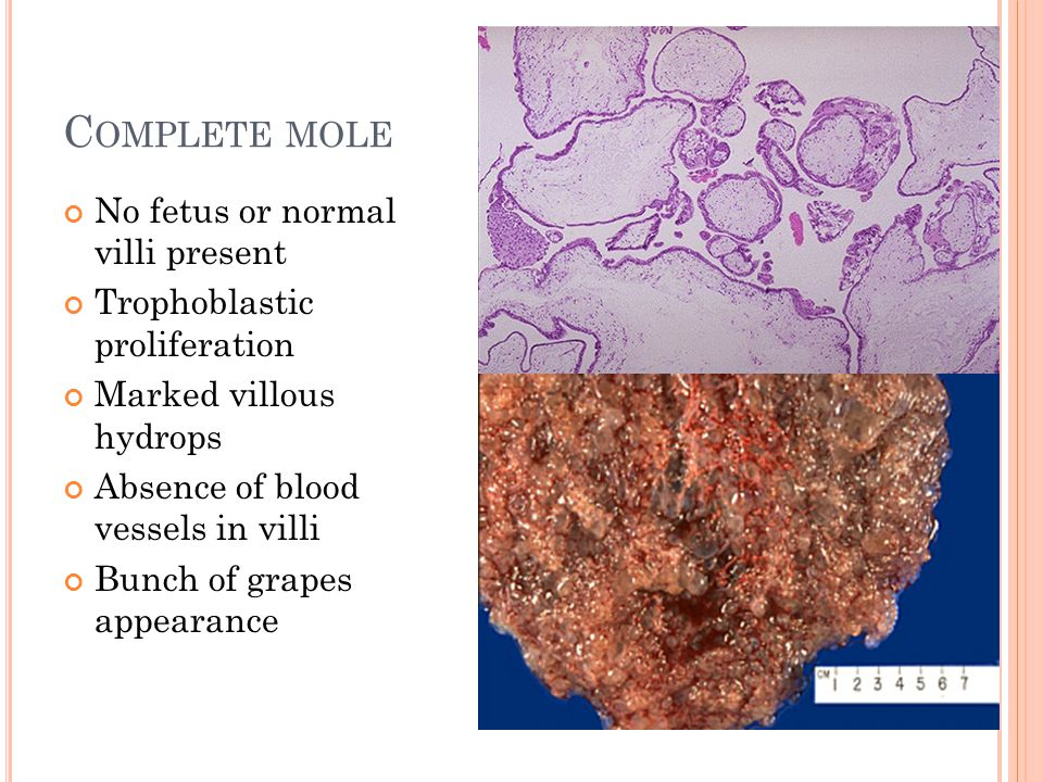 C OMPLETE MOLE No fetus or normal villi present Trophoblastic proliferation Marked villous hydrops Absence of blood vessels in villi Bunch of grapes appearance