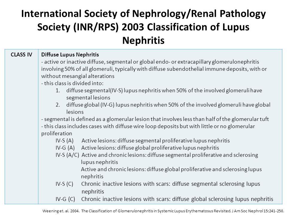 International Society of Nephrology/Renal Pathology Society (INR/RPS) 2003 Classification of Lupus Nephritis CLASS IVDiffuse Lupus Nephritis - active