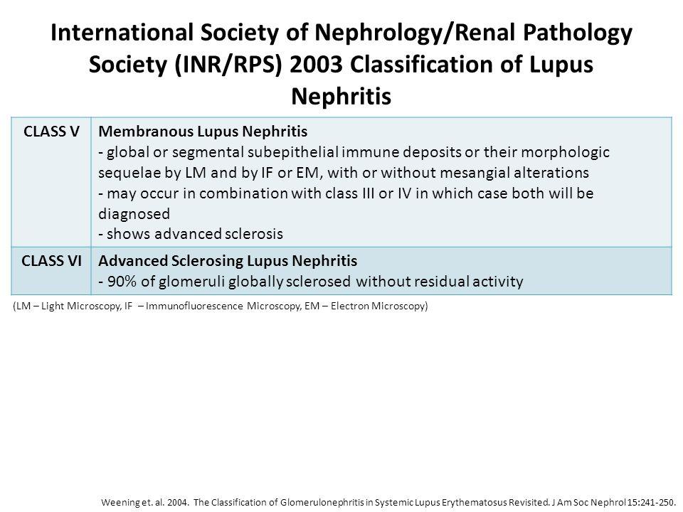 International Society of Nephrology/Renal Pathology Society (INR/RPS) 2003 Classification of Lupus Nephritis CLASS VMembranous Lupus Nephritis - globa