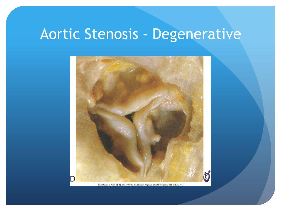 Aortic Stenosis - Degenerative
