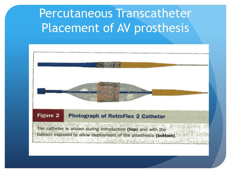Percutaneous Transcatheter Placement of AV prosthesis