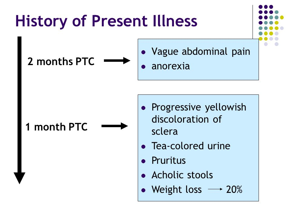 2 months PTC Vague abdominal pain anorexia 1 month PTC Progressive yellowish discoloration of sclera Tea-colored urine Pruritus Acholic stools Weight loss 20% History of Present Illness