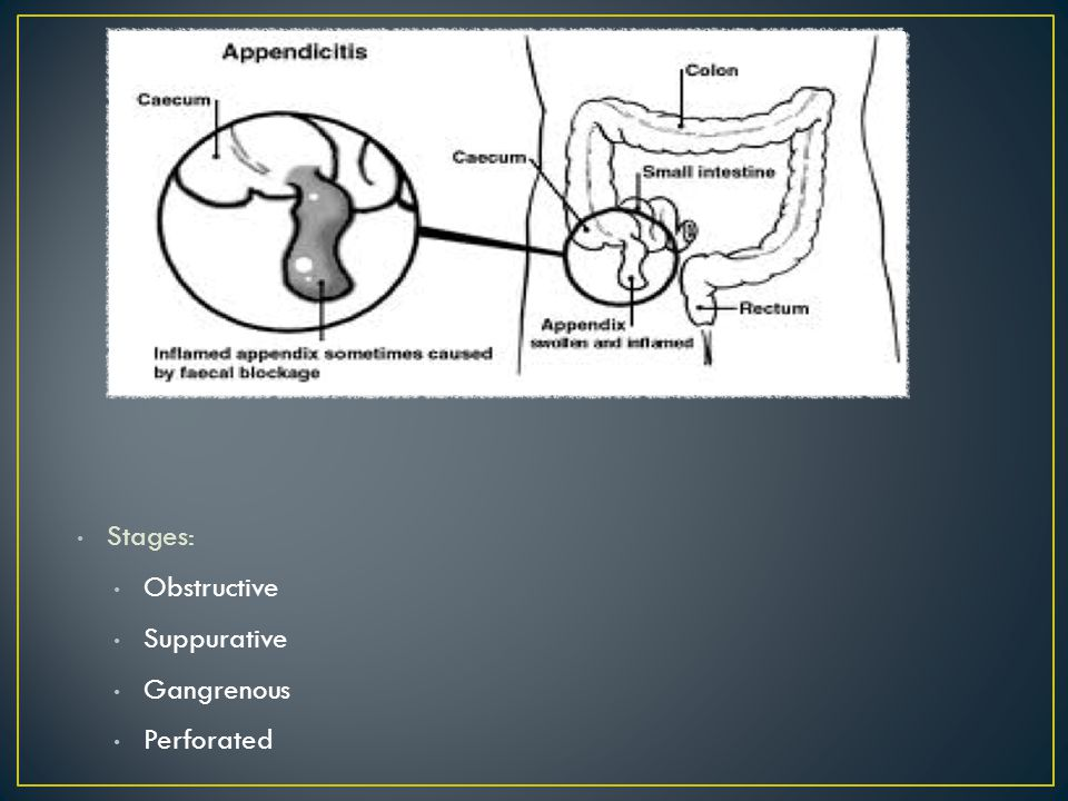 Stages: Obstructive Suppurative Gangrenous Perforated