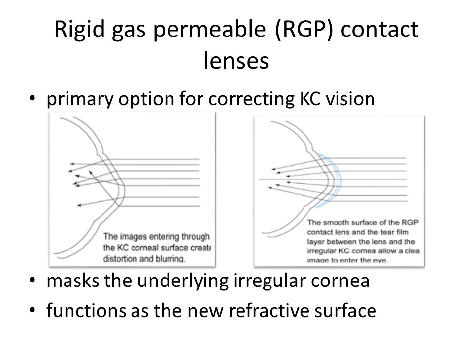 Intracorneal rings Semi-circular rings inserted into the mid layer of the cornea Flatten the cornea  change the shape and location of the cone Eliminates some or all of the irregularities caused by keratoconus Glasses or contact lenses may still be needed
