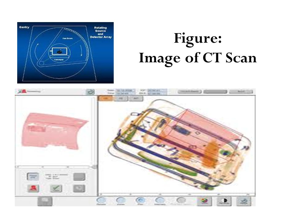 Figure: Image of CT Scan
