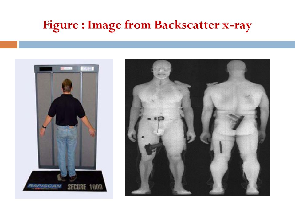 Figure : Image from Backscatter x-ray