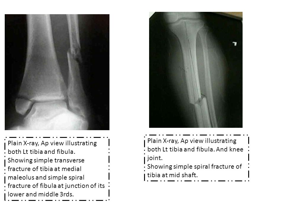 Plain X-ray, Ap view illustrating both Lt tibia and fibula.