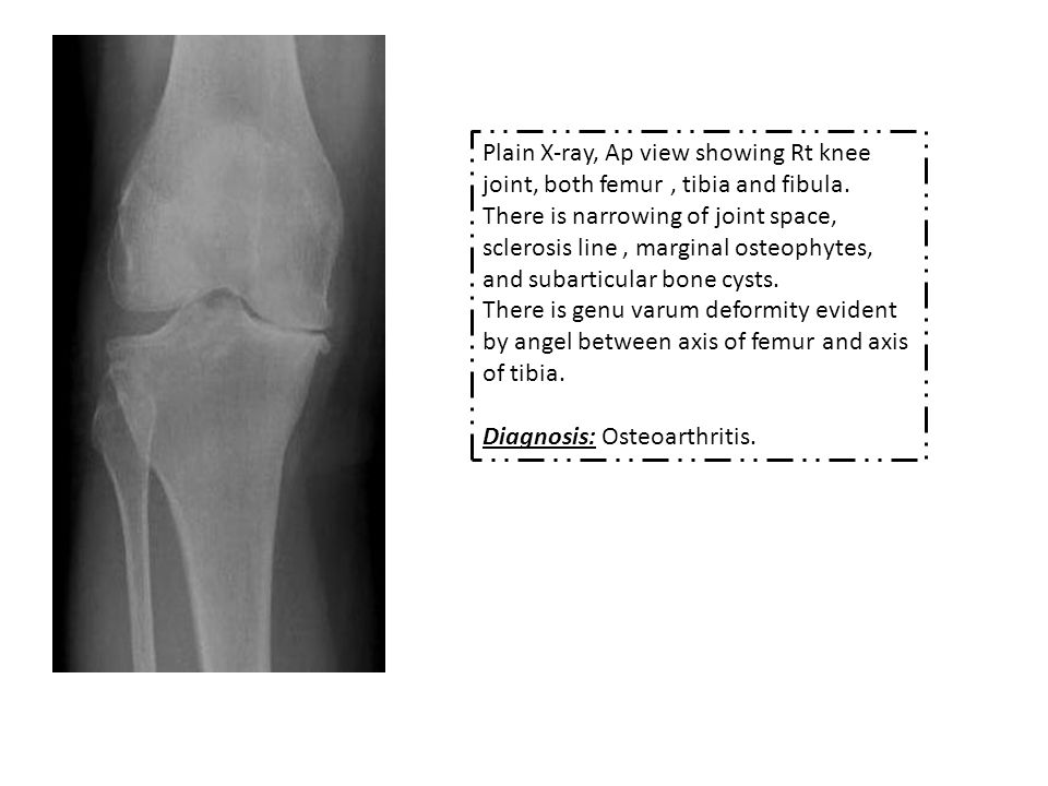 Plain X-ray, Ap view showing Rt knee joint, both femur, tibia and fibula.