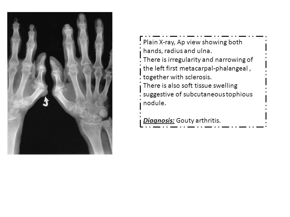 Plain X-ray, Ap view showing both hands, radius and ulna.