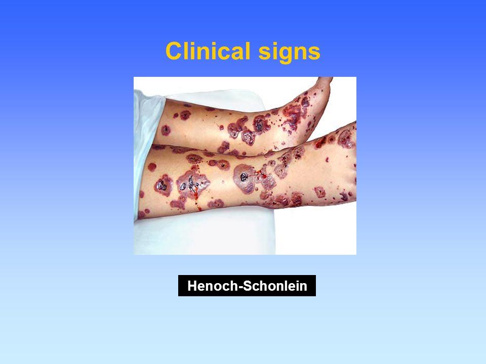 Clinical signs Henoch-Schonlein