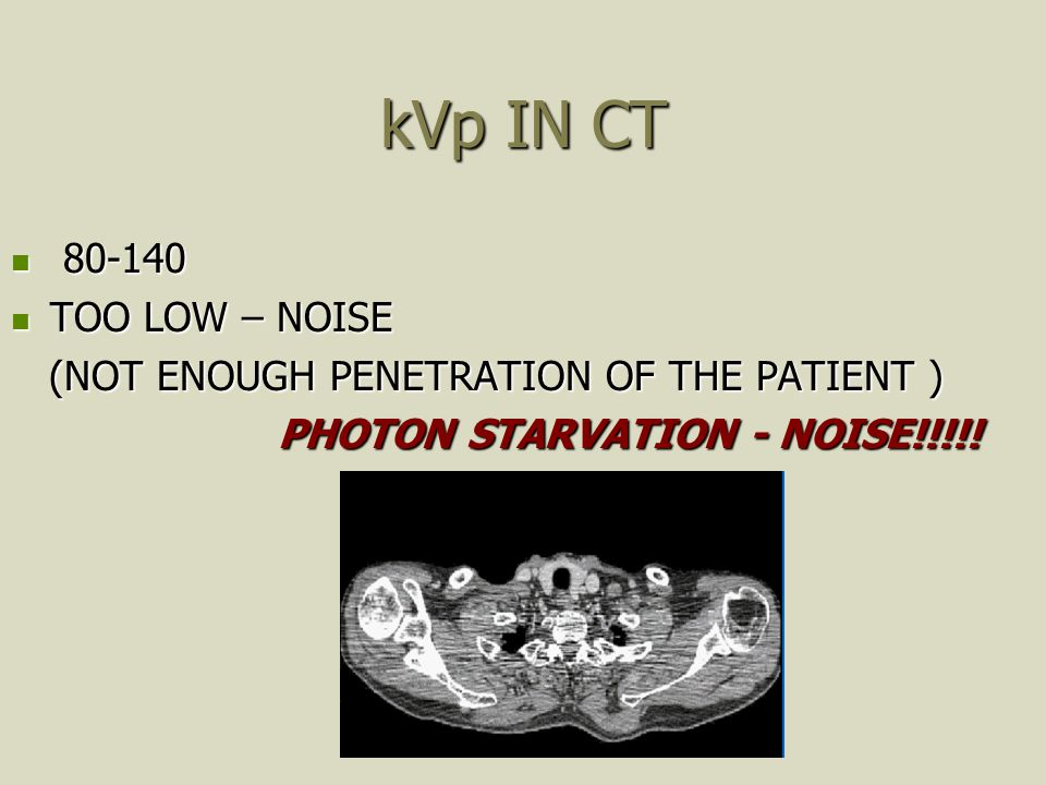 kVp IN CT 80-140 80-140 TOO LOW – NOISE TOO LOW – NOISE (NOT ENOUGH PENETRATION OF THE PATIENT ) (NOT ENOUGH PENETRATION OF THE PATIENT ) PHOTON STARV