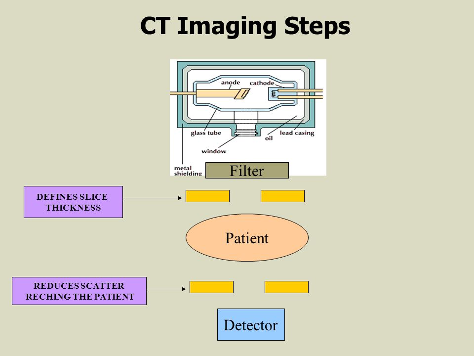 Filter Patient DEFINES SLICE THICKNESS REDUCES SCATTER RECHING THE PATIENT Detector CT Imaging Steps