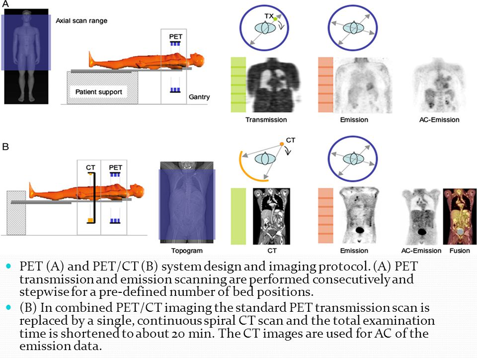 PET (A) and PET/CT (B) system design and imaging protocol. (A) PET transmission and emission scanning are performed consecutively and stepwise for a p