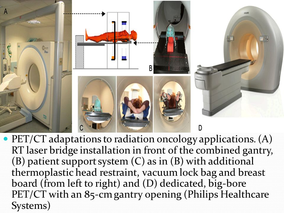 PET/CT adaptations to radiation oncology applications. (A) RT laser bridge installation in front of the combined gantry, (B) patient support system (C