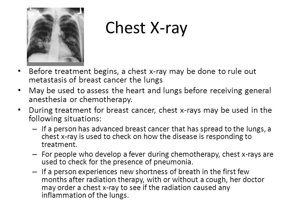 Chest X-ray Before treatment begins, a chest x-ray may be done to rule out metastasis of breast cancer the lungs May be used to assess the heart and l