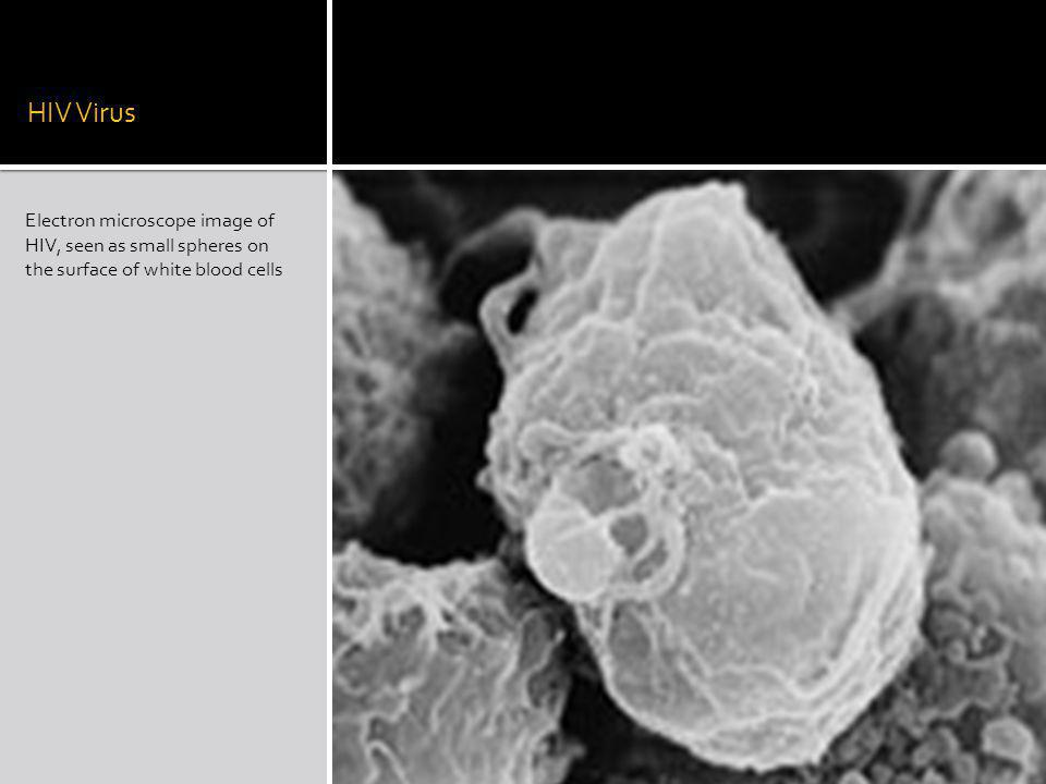HIV Virus Electron microscope image of HIV, seen as small spheres on the surface of white blood cells