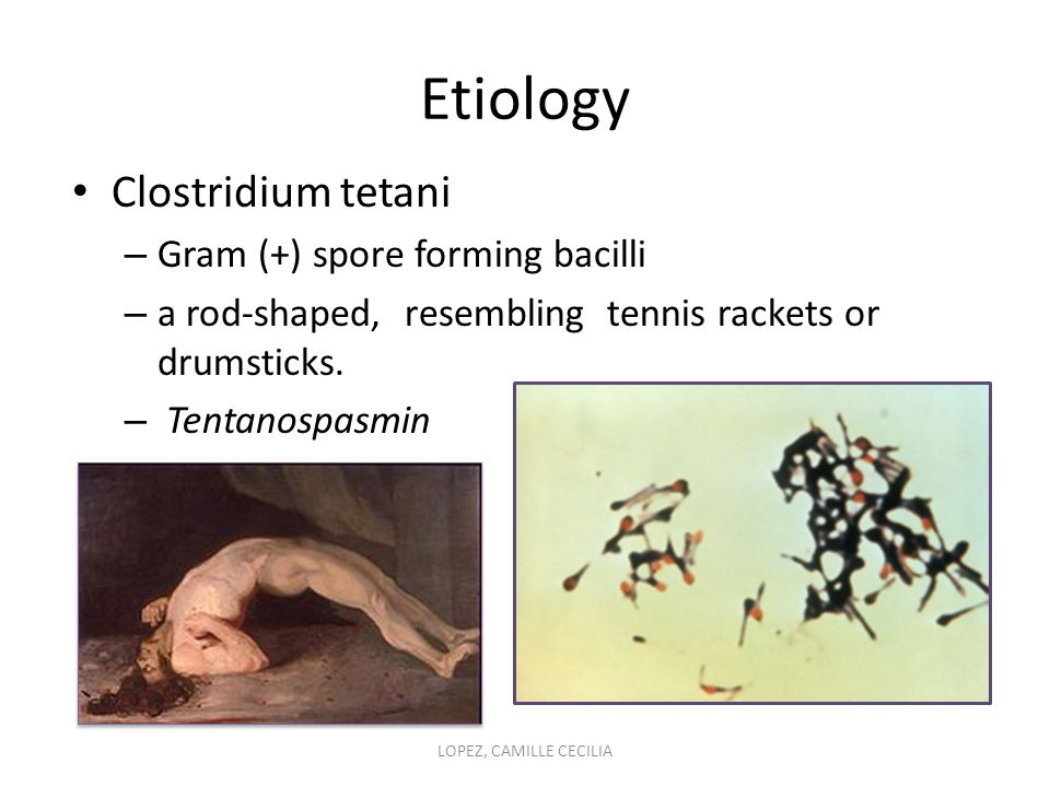Etiology Clostridium tetani – Gram (+) spore forming bacilli – a rod-shaped, resembling tennis rackets or drumsticks.