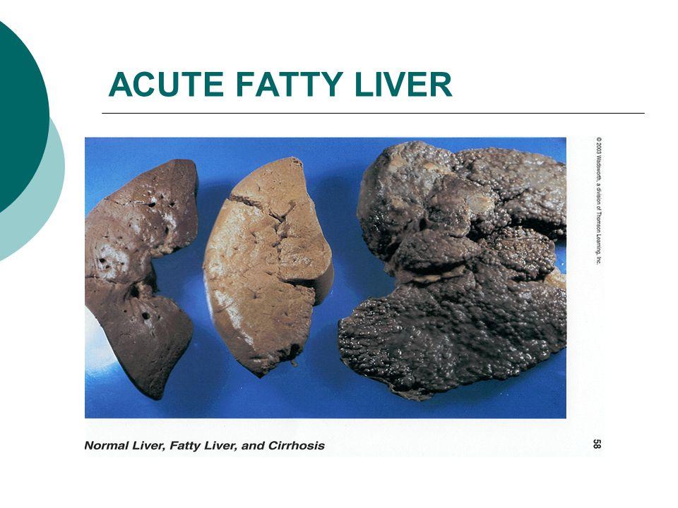 ACUTE FATTY LIVER