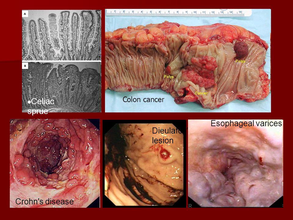  Celiac sprue Colon cancer Crohn's disease Dieulafoy's lesion Esophageal varices