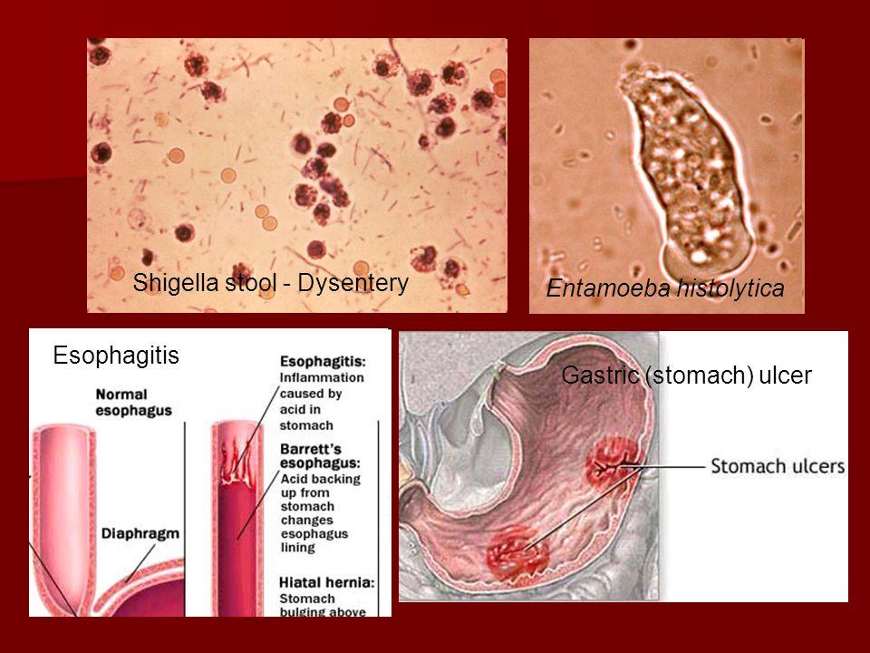 Shigella stool - Dysentery Entamoeba histolytica Esophagitis Gastric (stomach) ulcer