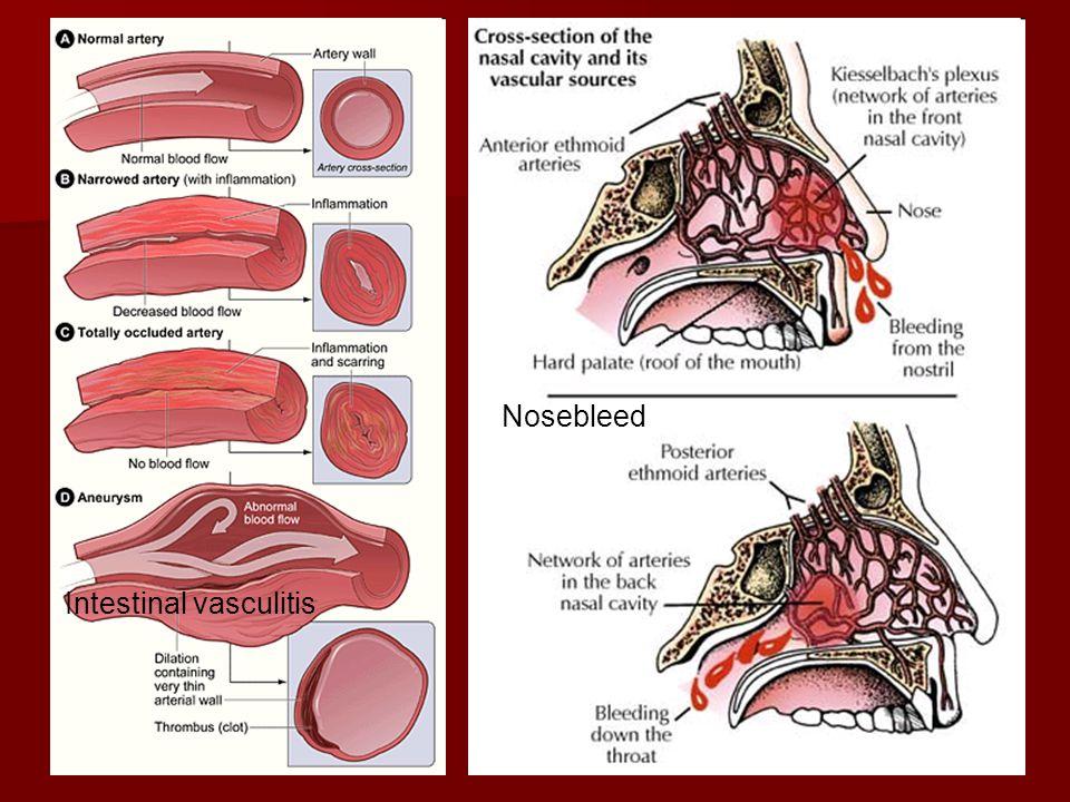 Intestinal vasculitis Nosebleed