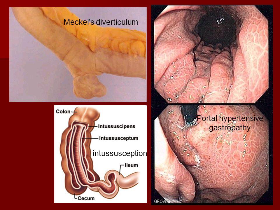 Meckel's diverticulum intussusception Portal hypertensive gastropathy