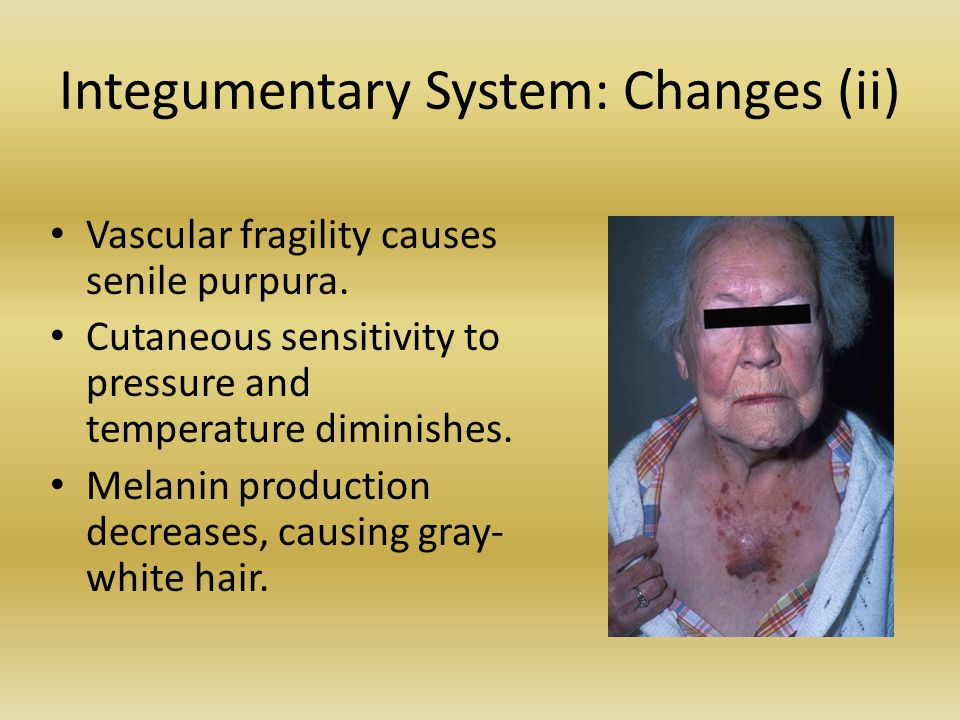 Integumentary System: Changes (ii) Vascular fragility causes senile purpura. Cutaneous sensitivity to pressure and temperature diminishes. Melanin pro