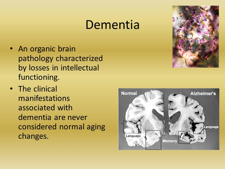 Dementia An organic brain pathology characterized by losses in intellectual functioning. The clinical manifestations associated with dementia are neve