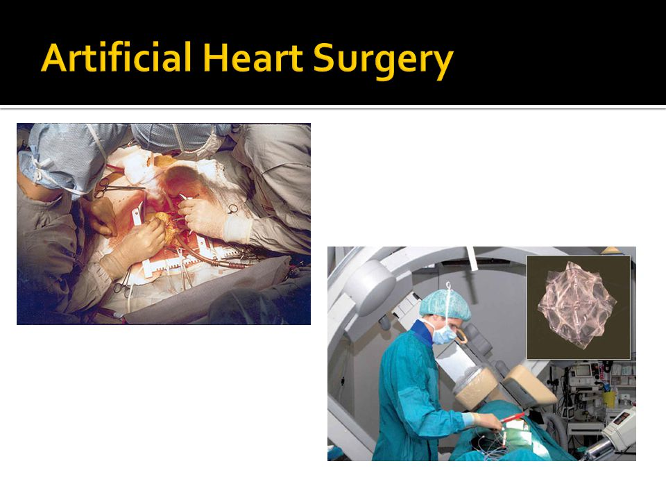 The risks for surgery include:  Bleeding  Infection  Heart attack  Irregular heartbeat  Diseases :Cancer, kidney failure, Multi- organ failure etc.