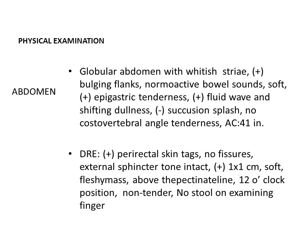 PHYSICAL EXAMINATION Globular abdomen with whitish striae, (+) bulging flanks, normoactive bowel sounds, soft, (+) epigastric tenderness, (+) fluid wave and shifting dullness, (-) succusion splash, no costovertebral angle tenderness, AC:41 in.