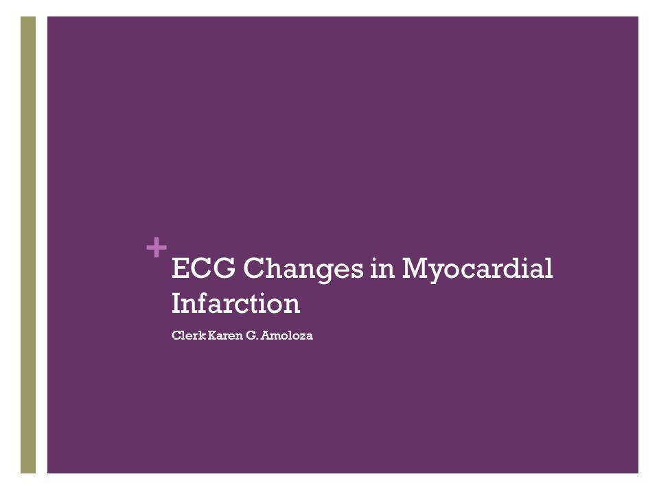 + ECG Changes in Myocardial Infarction Clerk Karen G. Amoloza
