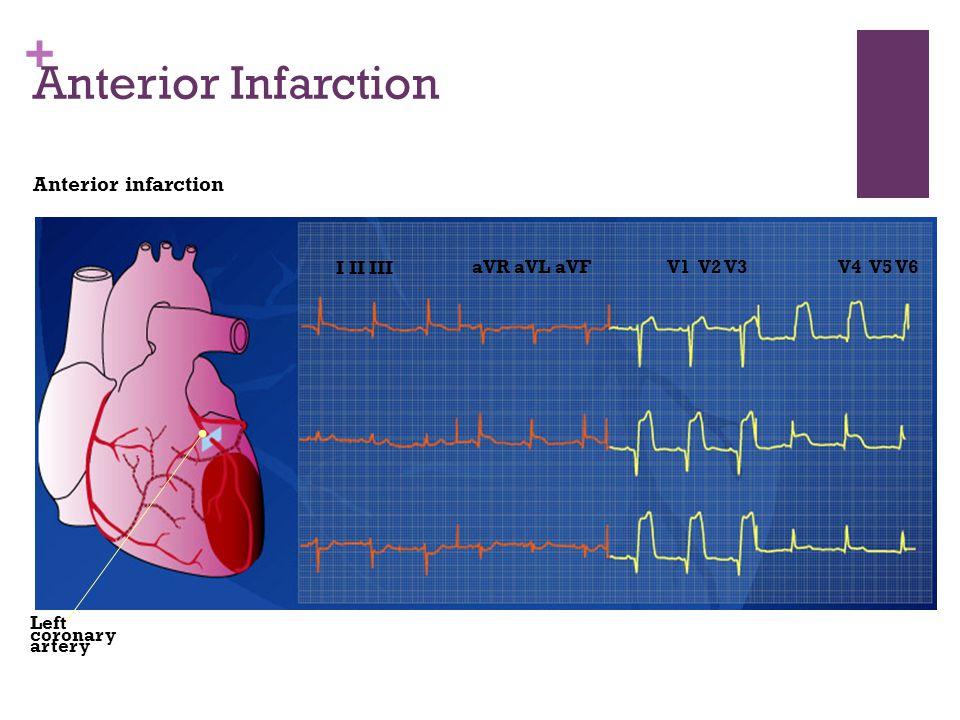 + Anterior Infarction Anterior infarction I II III aVR aVL aVFV1 V2 V3V4 V5 V6 Left coronary artery