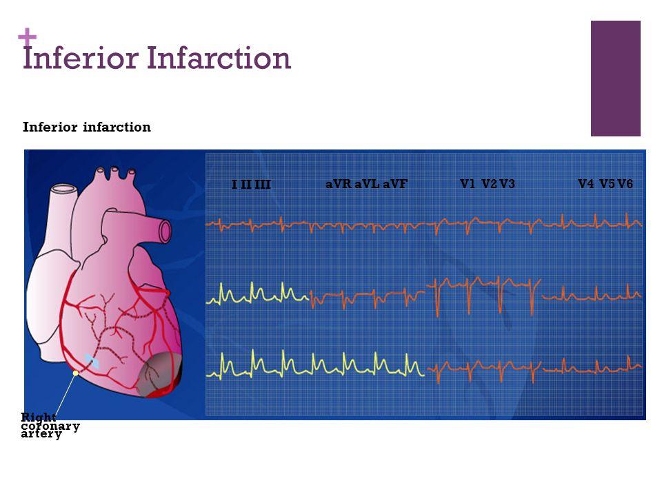 + Inferior Infarction Inferior infarction I II III aVR aVL aVFV1 V2 V3V4 V5 V6 Right coronary artery
