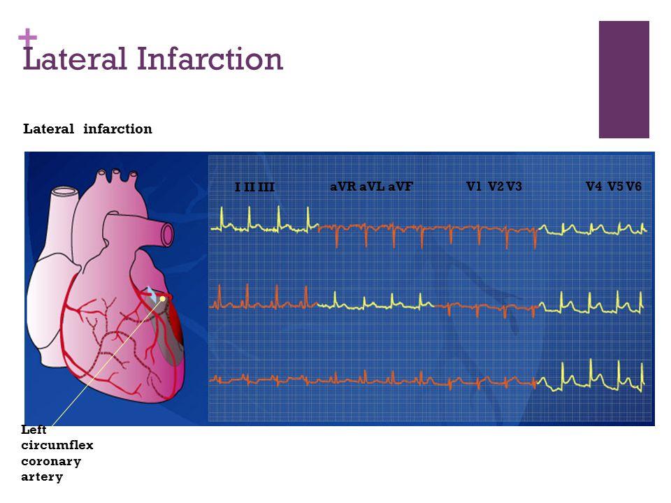 + Lateral Infarction Lateral infarction I II III aVR aVL aVFV1 V2 V3V4 V5 V6 Left circumflex coronary artery