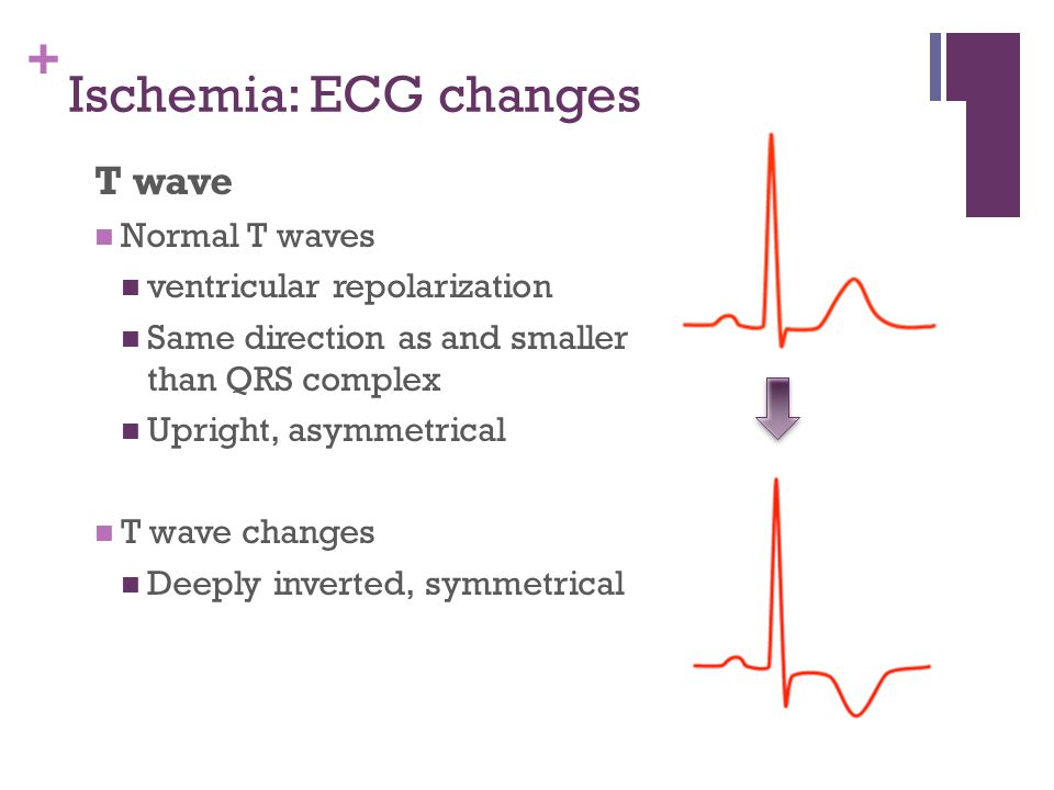 + Ischemia: ECG changes T wave Normal T waves ventricular repolarization Same direction as and smaller than QRS complex Upright, asymmetrical T wave c