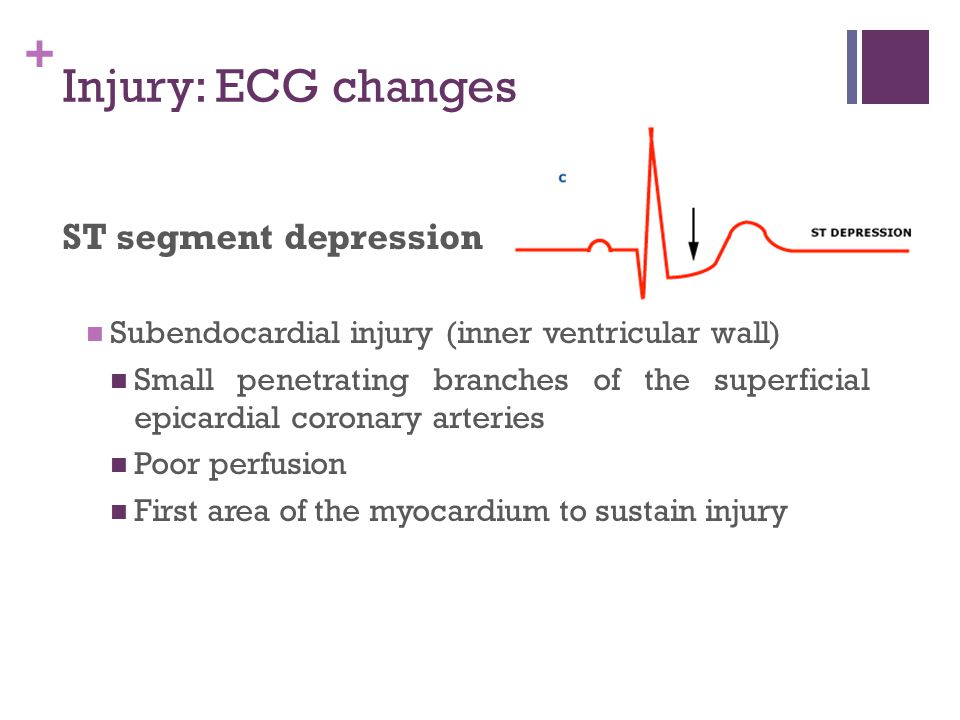+ Injury: ECG changes ST segment depression Subendocardial injury (inner ventricular wall) Small penetrating branches of the superficial epicardial co