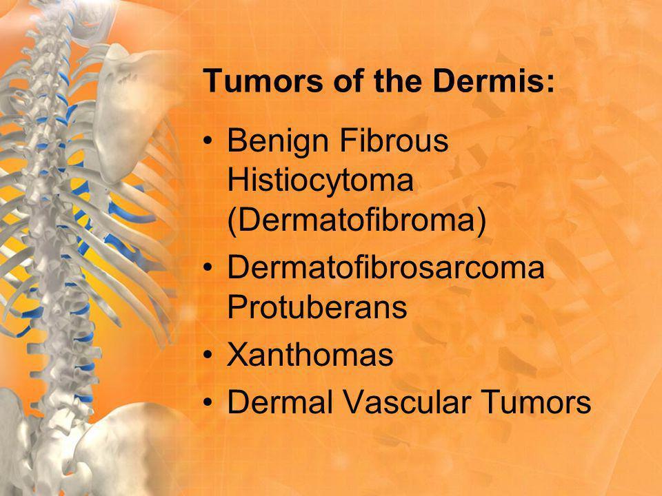 Tumors of the Dermis: Benign Fibrous Histiocytoma (Dermatofibroma) Dermatofibrosarcoma Protuberans Xanthomas Dermal Vascular Tumors