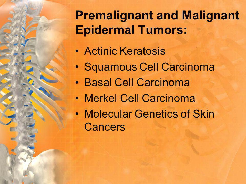 Premalignant and Malignant Epidermal Tumors: Actinic Keratosis Squamous Cell Carcinoma Basal Cell Carcinoma Merkel Cell Carcinoma Molecular Genetics of Skin Cancers