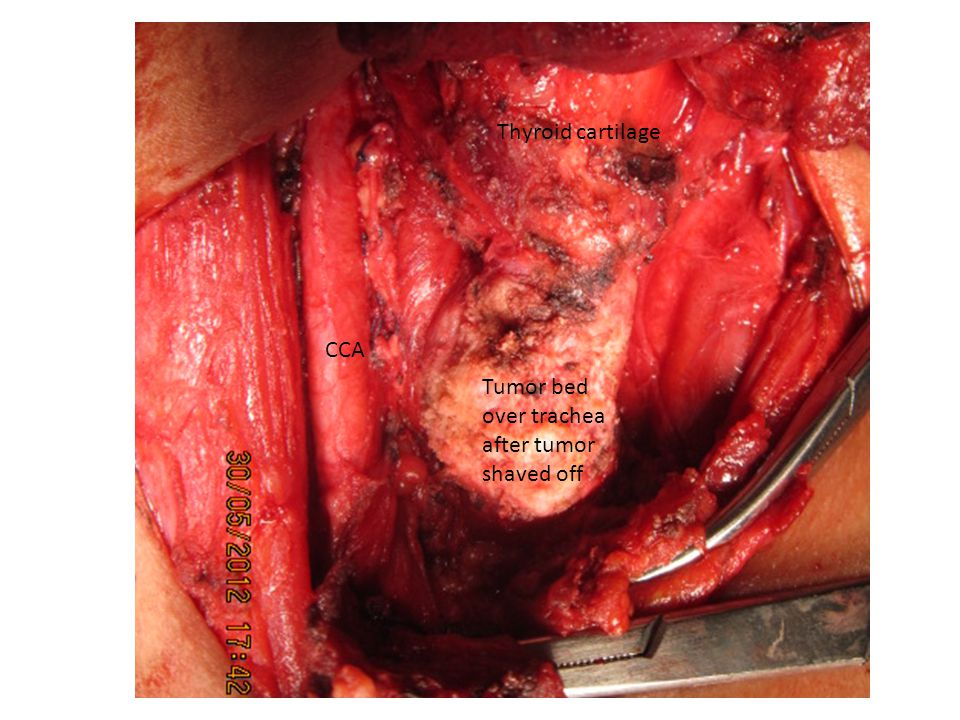 Tumor bed over trachea after tumor shaved off CCA Thyroid cartilage