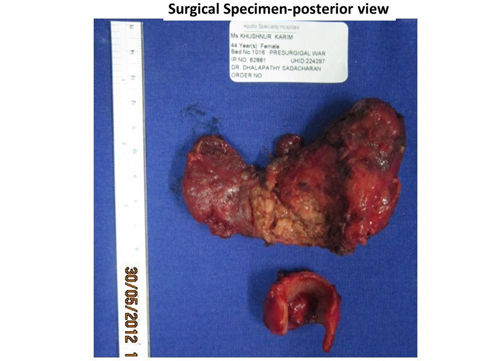 Surgical Specimen-posterior view