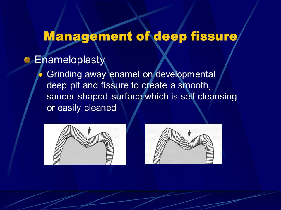 Management of deep fissure Enameloplasty Grinding away enamel on developmental deep pit and fissure to create a smooth, saucer-shaped surface which is