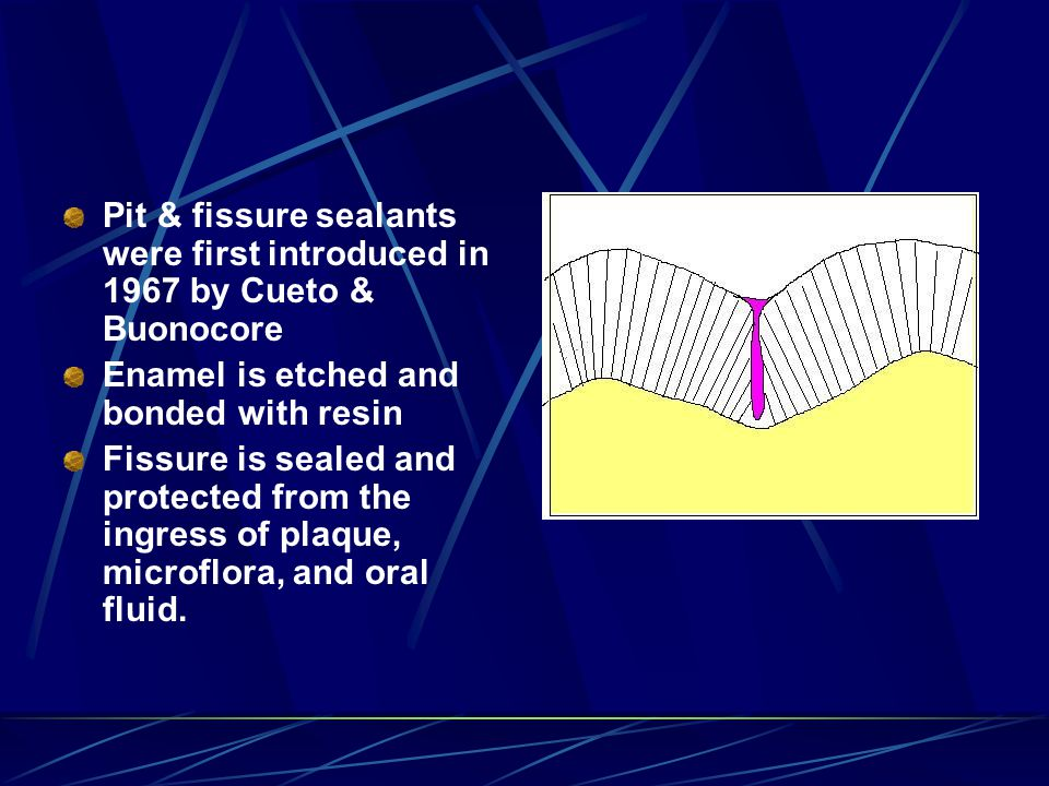 Pit & fissure sealants were first introduced in 1967 by Cueto & Buonocore Enamel is etched and bonded with resin Fissure is sealed and protected from