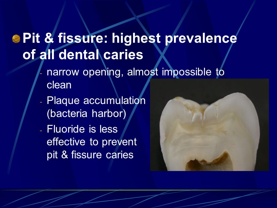 Pit & fissure: highest prevalence of all dental caries - narrow opening, almost impossible to clean - Plaque accumulation (bacteria harbor) - Fluoride