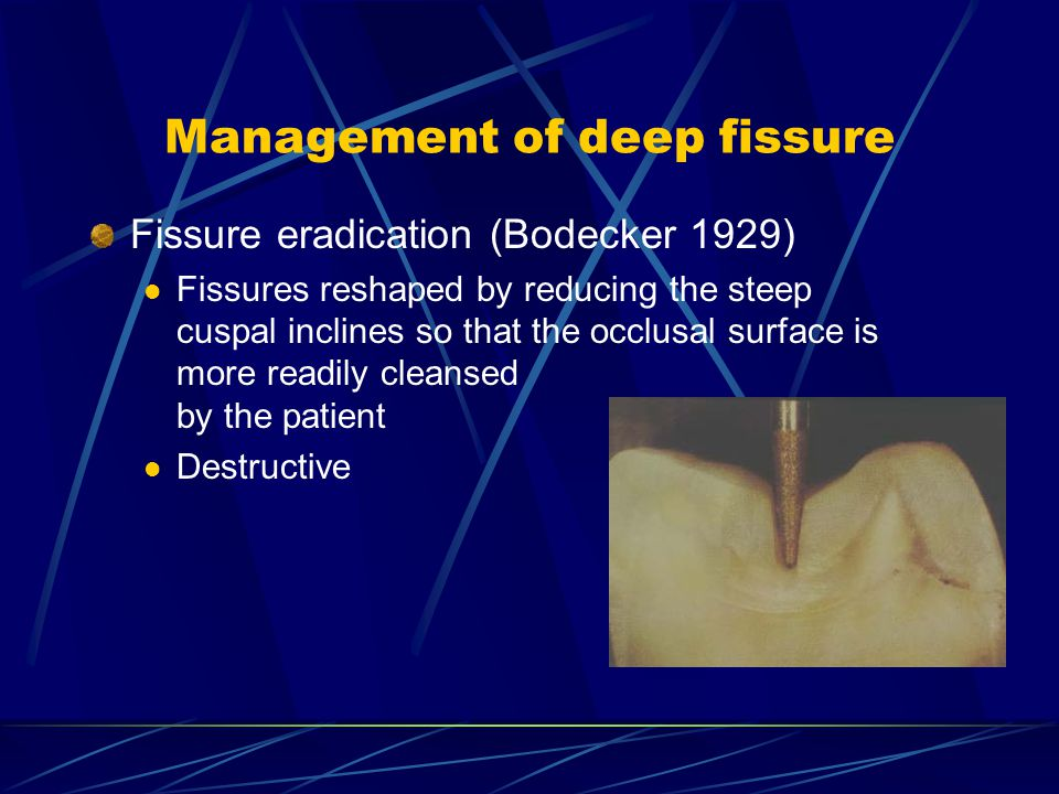 Management of deep fissure Enameloplasty Grinding away enamel on developmental deep pit and fissure to create a smooth, saucer-shaped surface which is self cleansing or easily cleaned