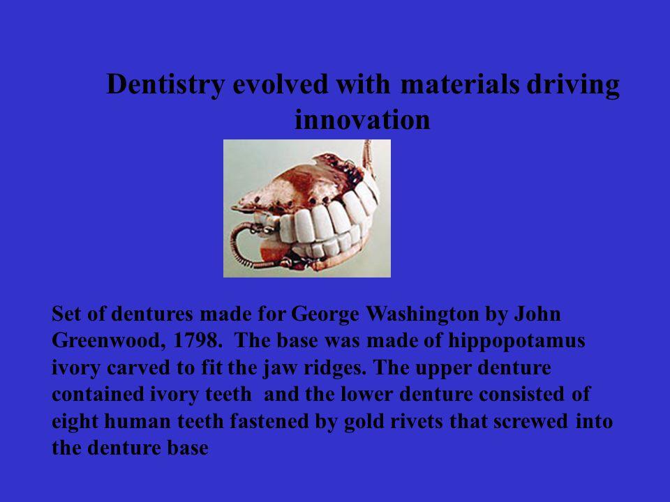 Set of dentures made for George Washington by John Greenwood, 1798.